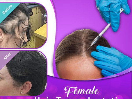 Hair Transplant Surgery For Women: Is It Valuable?