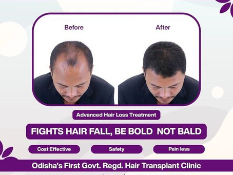 What is Hair Transplant Surgery? Is Hair Transplant Permanent?