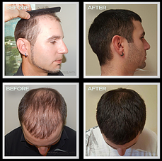 hairline-reconstructions.png