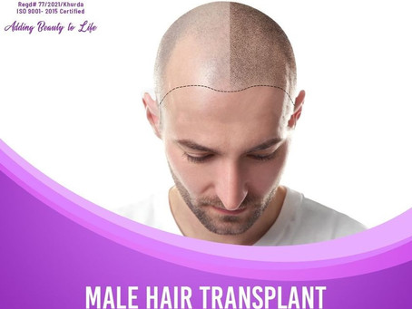 Hair transplant for men – Is It Really Effective?