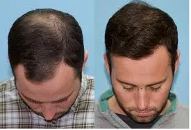 hairline-reconstruction.png