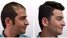 hairlinereconstruction.png