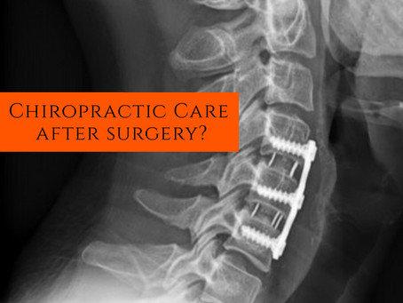 I had Spinal Surgery... Now What?