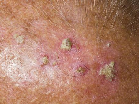NEOGEN treatment decreases the riks of developing skin cancer.