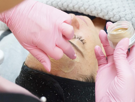 The peel everyone's talking about.. Introducing the Cosmelan Depigmentation Peel!