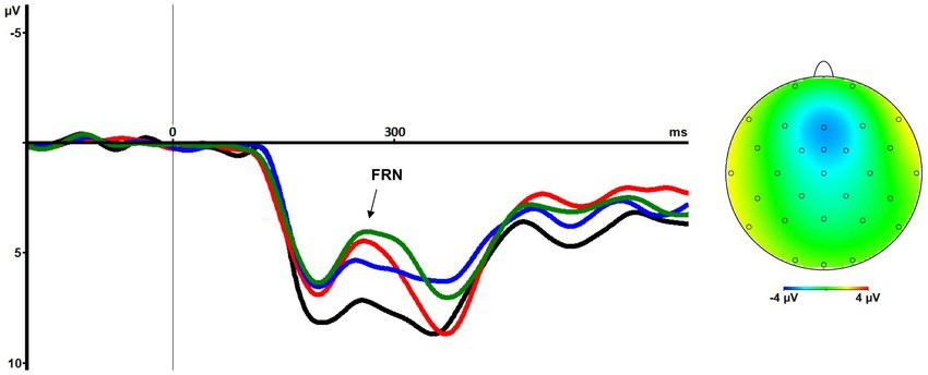 Figure 1 Example of an ERP waveform. From Leicht et al., 2013 (https://doi.org/10.1371/journal.pone.0083414).