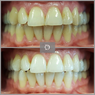 teeth whitening at chase dental care
