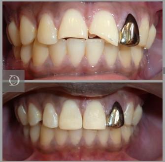 Composite bonding at chase dental care