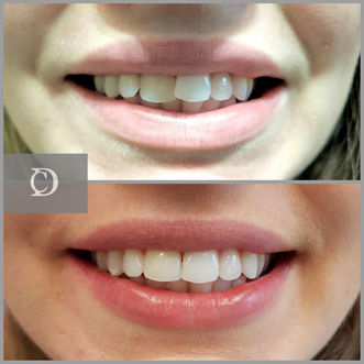 invisalign at chase dental care