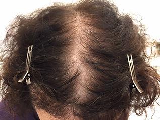 Plaukų mezoterapija gydymo eigoje