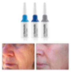 pHformula veido senejimas