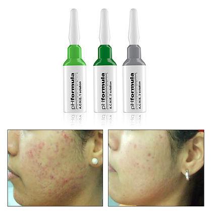 pHformula acne