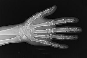 Hand x-ray_0.jpg