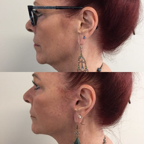 Glenys, before and after at 2 months