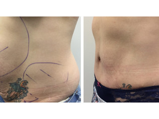 TUMMY TUCK AS A DAY PROCEDURE