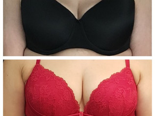 FAT TRANSFER TO THE BREASTS OFFERS NEW POSSIBILITIES