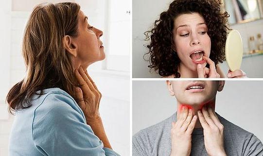 Oral cancer warning signs.jpg
