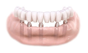 full arch implant prosthetics.jpg