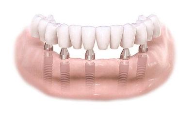 full arch implant prosthetics.jpg