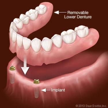 removable-lower-denture.jpg