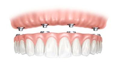 implant denture.jpg