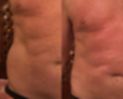 Men's Love Handles.png
