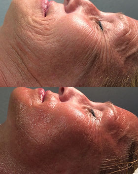 Facial Side- Before & After.jpeg