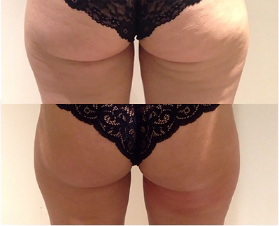Cellulite Before after.png