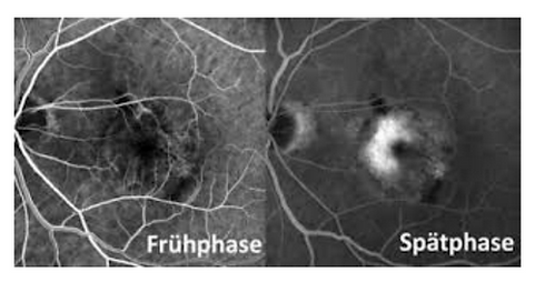 Flureszenz-Angiographie, Augenarzt Hamburg