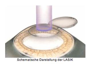 LASIK-Behandlung