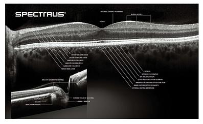 optische Kohärenztomographie