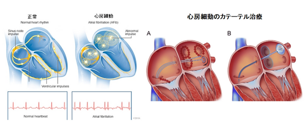 不整脈:心房細動.png