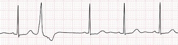 心室性期外収縮.png