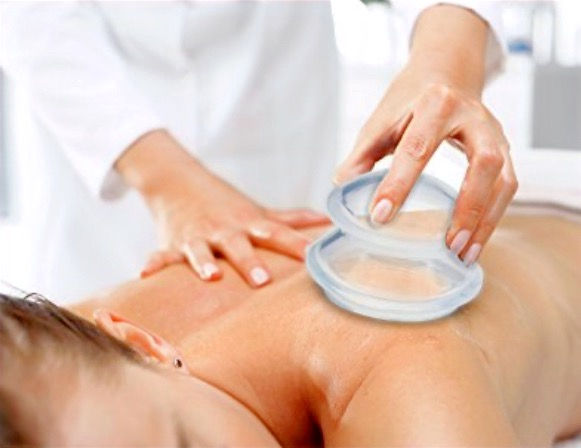 Silicone Cupping Massage