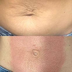 before-and-after-plasma-fibroblast-cours