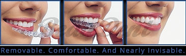 Invisible Aligner Orthodontics by BeauDe