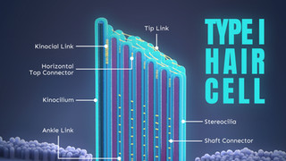Type I Hair Cell