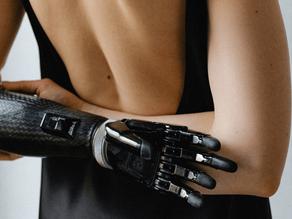 Designer Prosthetics: A Modern Solution for Aesthetics