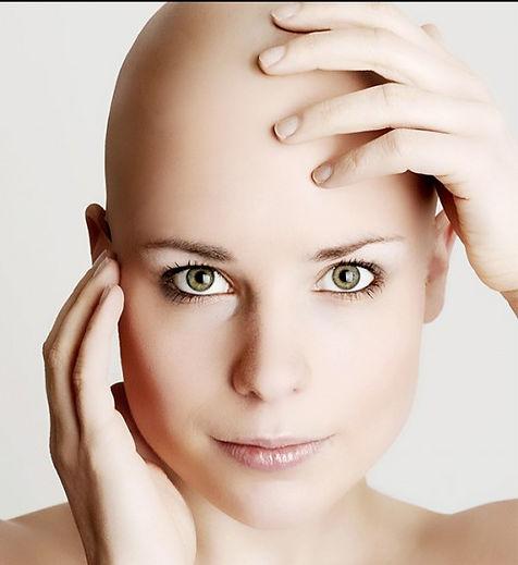 alopecia-en-cejas.jpg