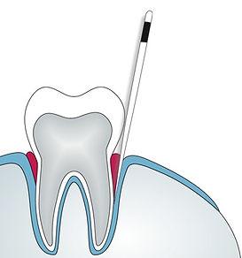 Analisi-del-DNA-batterico-nella-parodontite.-Prelievo