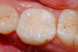 Sostituzione di otturazione in amalgama con ricostruzione estetica bianca in composito