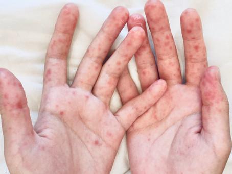 患手足口病全記錄 如何應對和加快復原?