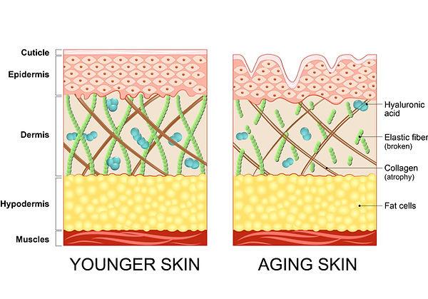 Aging Haut.jpg