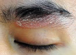 Dermatite seborroica: a Ferrara sempre piu' casi