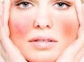 Pelle sensibile:cos'e'? Quali rimedi?