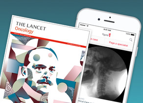 "The Lancet Oncology says Figure 1 is ""meeting junior oncologists where they are: on their phones"""