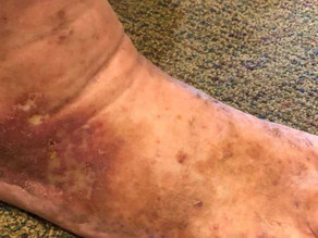 What would be your next steps in this complex case of a six-month ulcer?