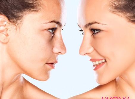 Facial Treatments Resumed from Tomorrow!