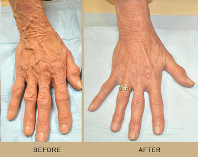 What to know about Hand Veins