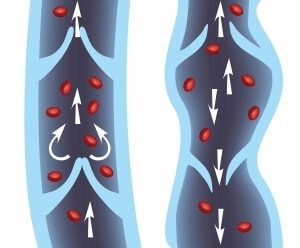 The Importance of Maintaining Optimal Vein Health